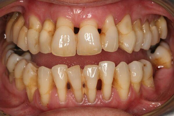 răng hàm đau và lung lay