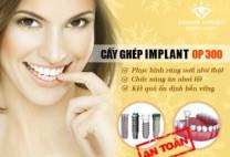 Răng bị mẻ phải làm sao? – Phương pháp nào điều trị tốt nhất hiện nay?