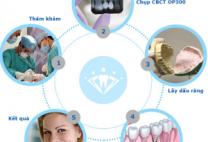Trồng răng hàm số 6- phục hình răng hàm không thể bỏ qua.