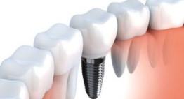 Làm implant giá bao nhiêu? >> Cập nhật bảng giá chuẩn nhất