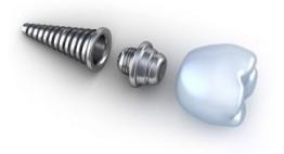 Hình ảnh kết quả khách hàng cấy ghép implant