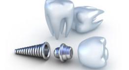 Video quy trình cấy ghép răng implant