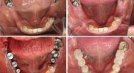 Quy trình cắm răng implant thực hiện như thế nào? – Quy trình chuẩn