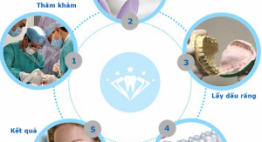 Quy trình trồng răng Implant được diễn ra như thế nào?